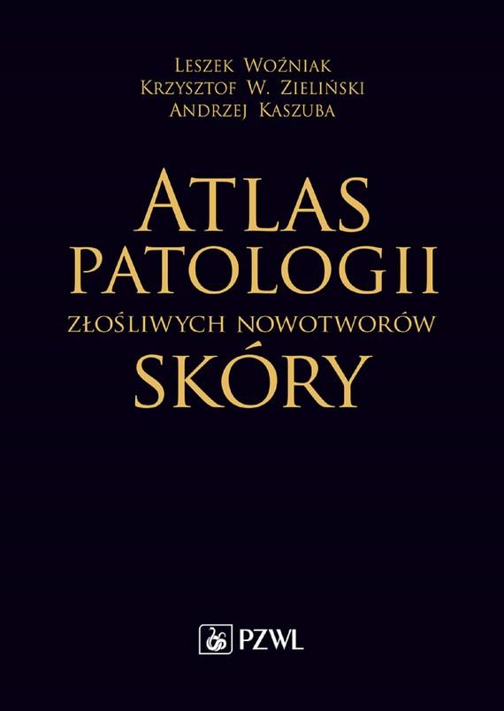okładka Atlas patologii złośliwych nowotworów skóry, Ebook   Krzysztof W. Zieliński, Leszek Woźniak, Andrzej Kaszuba