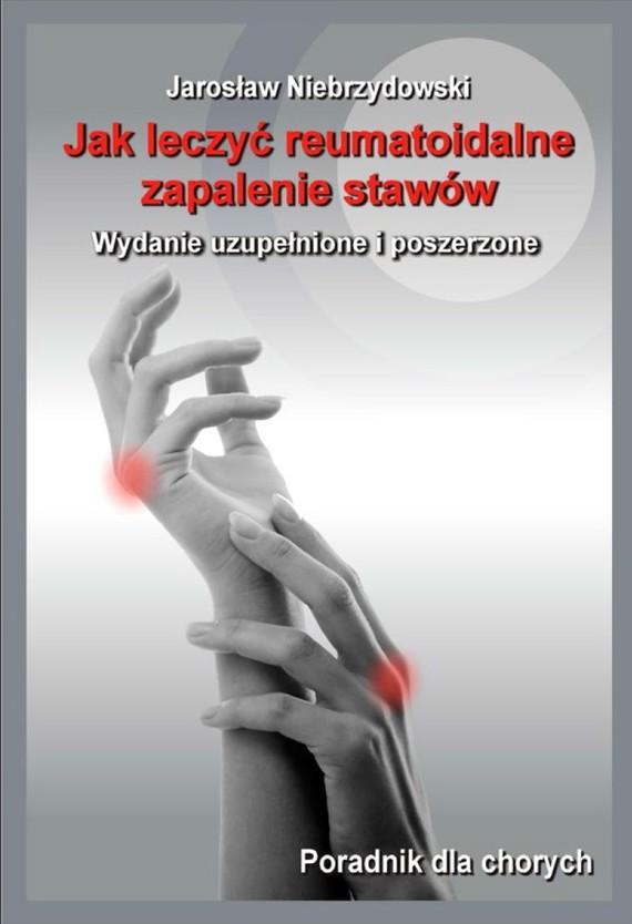 okładka Jak leczyć reumatoidalne zapalenie stawów II, Ebook | Jarosław Niebrzydowski
