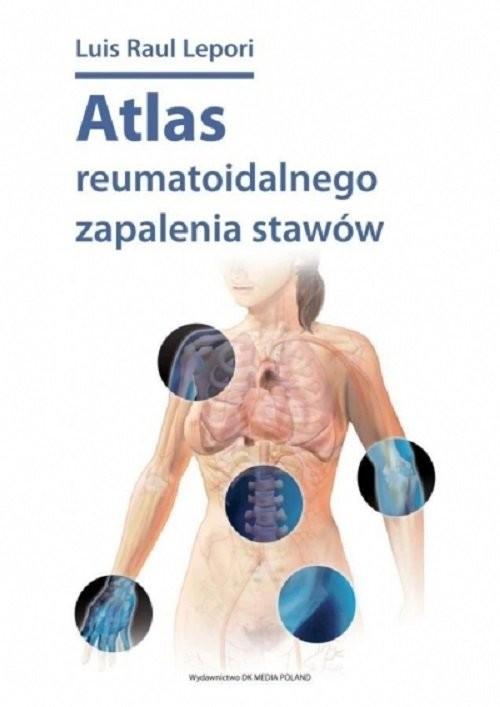 okładka Atlas reumatoidalnego zapalenia stawów / DK Media, Książka   Luis Raul Lepori