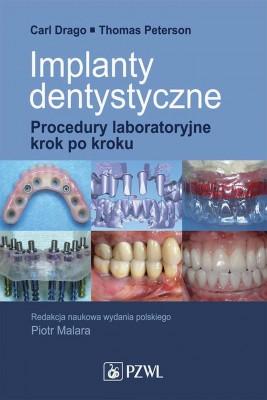 okładka Implanty dentystyczne. Procedury laboratoryjne krok po kroku, Ebook   Carl  Drago, Thomas  Peterson