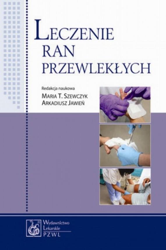 okładka Leczenie ran przewlekłychebook | EPUB, MOBI | Maria  Szewczyk
