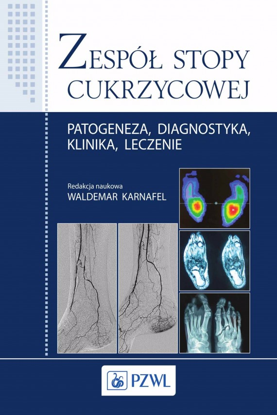okładka Zespół stopy cukrzycowejebook | EPUB, MOBI | Waldemar  Karnafel