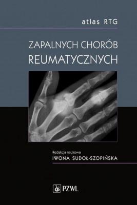 okładka Atlas RTG zapalnych chorób reumatycznych, Ebook | Iwona Sudoł-Szopińska